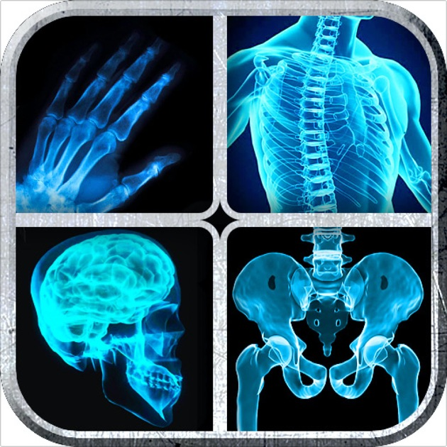 Real Xray App For Iphone