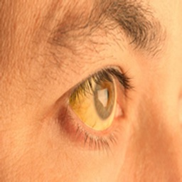 Symptoms Of Jaundice