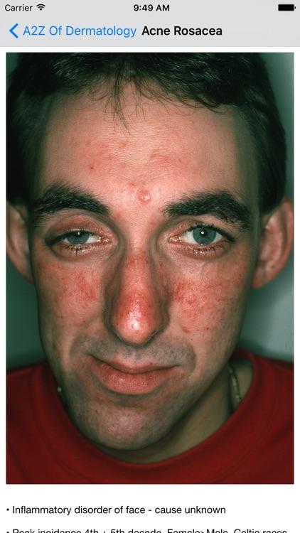 A2Z of Dermatology