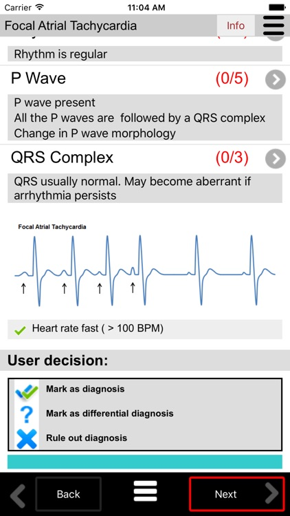 ECG Calc Lite screenshot-4