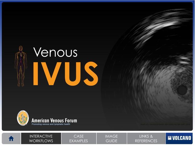 Venous IVUS