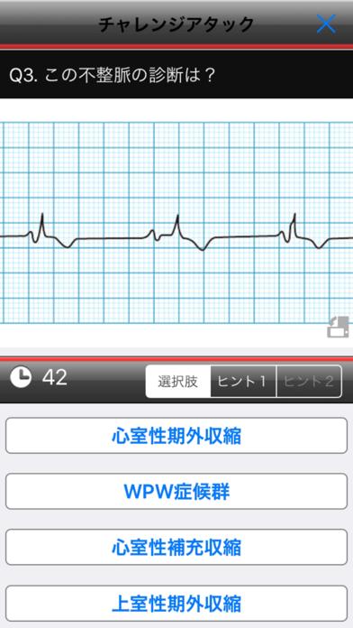 らくらく心電図トレーニング(英語モード付き) ScreenShot3