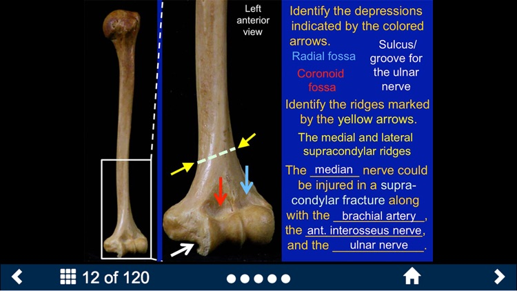 MSK Anatomy - SecondLook screenshot-3