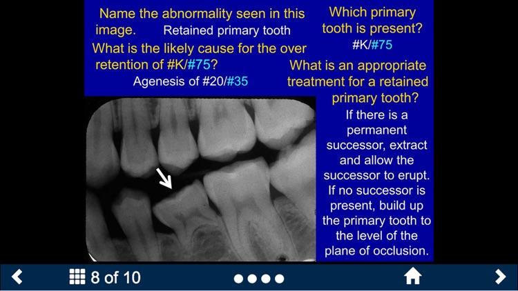Oral Radiology Lite - SecondLook screenshot-3