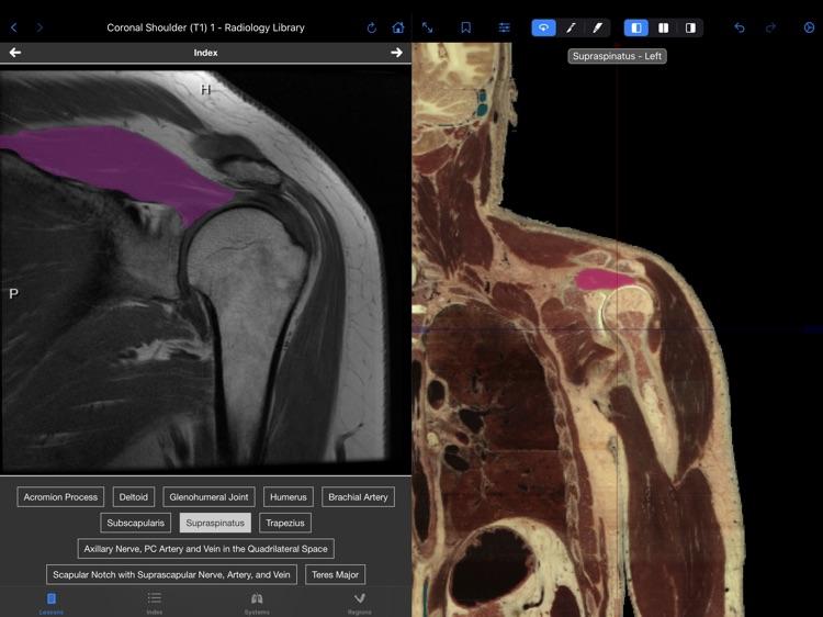 VH Dissector Pro screenshot-6