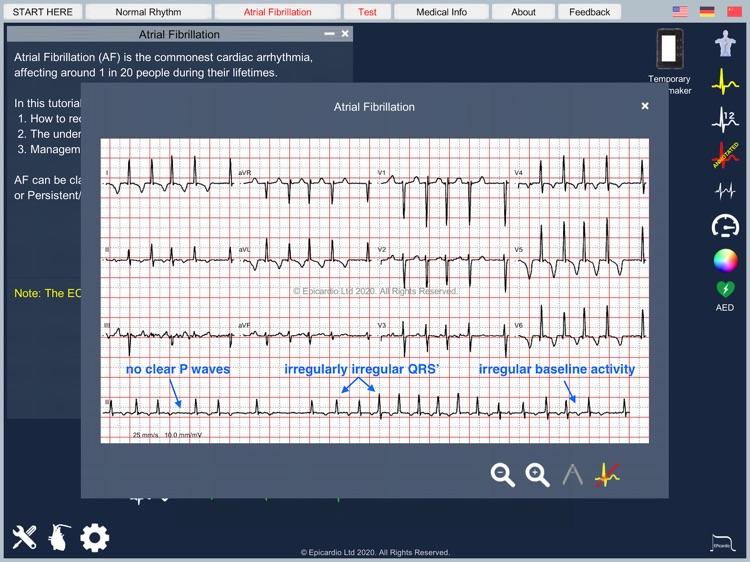 Atrial Fibrillation screenshot-4