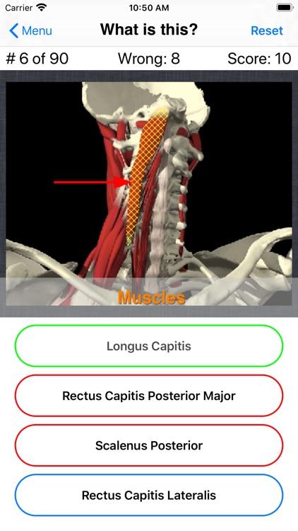 Anatomy Spine Quiz screenshot-5