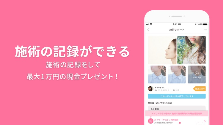 美容整形・美容医療の口コミ・予約アプリ 美容外科検索メイリー screenshot-6
