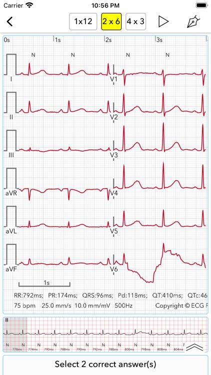 ECG Test Pro