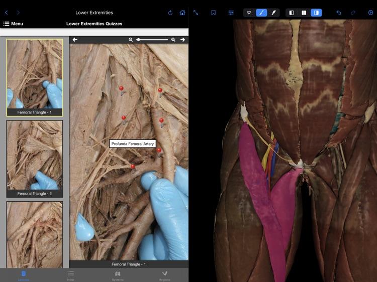VH Dissector Pro screenshot-3