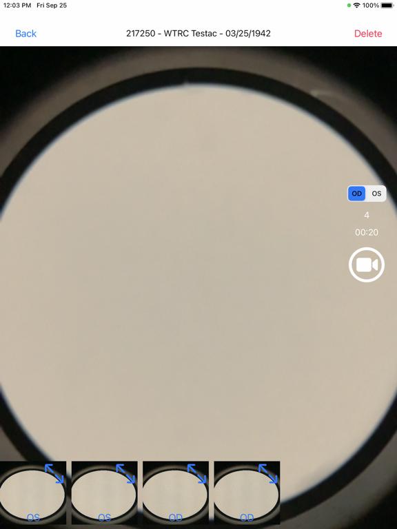 Brane SlitLamp Capture screenshot 6