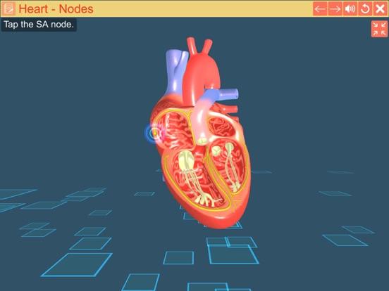 Cardiac pacemaker screenshot 12