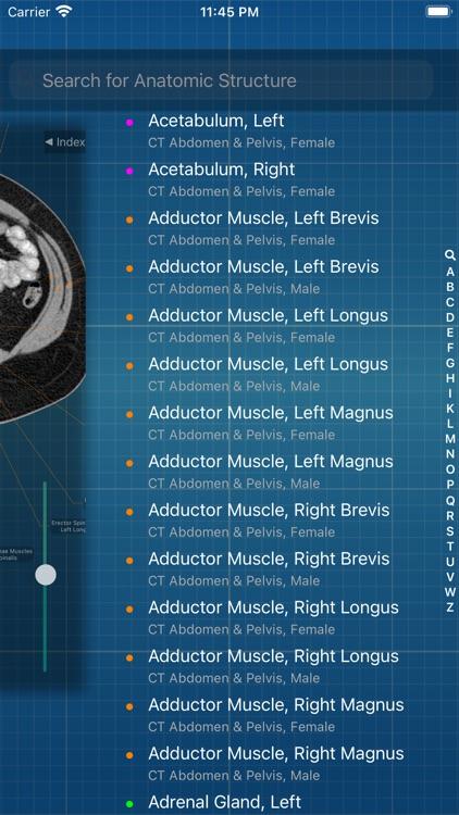 X-Anatomy Pro