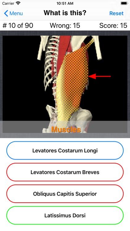 Anatomy Spine Quiz screenshot-6