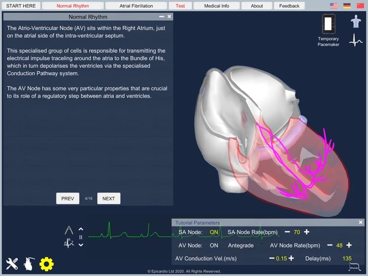Atrial Fibrillation screenshot-5