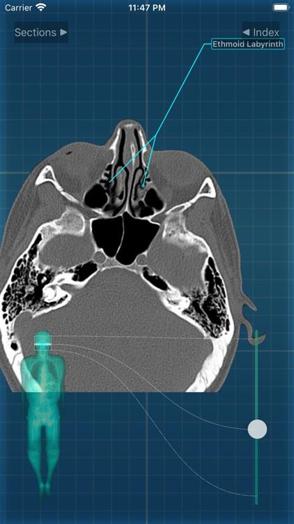 X-Anatomy Pro screenshot-4
