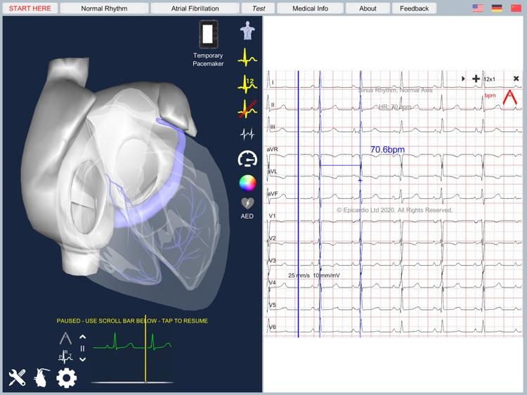 Atrial Fibrillation screenshot-6