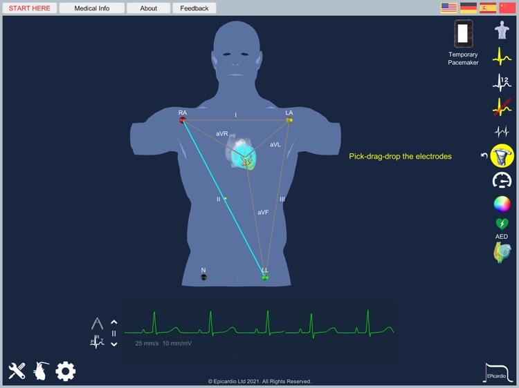 Epicardio Heart Simulator